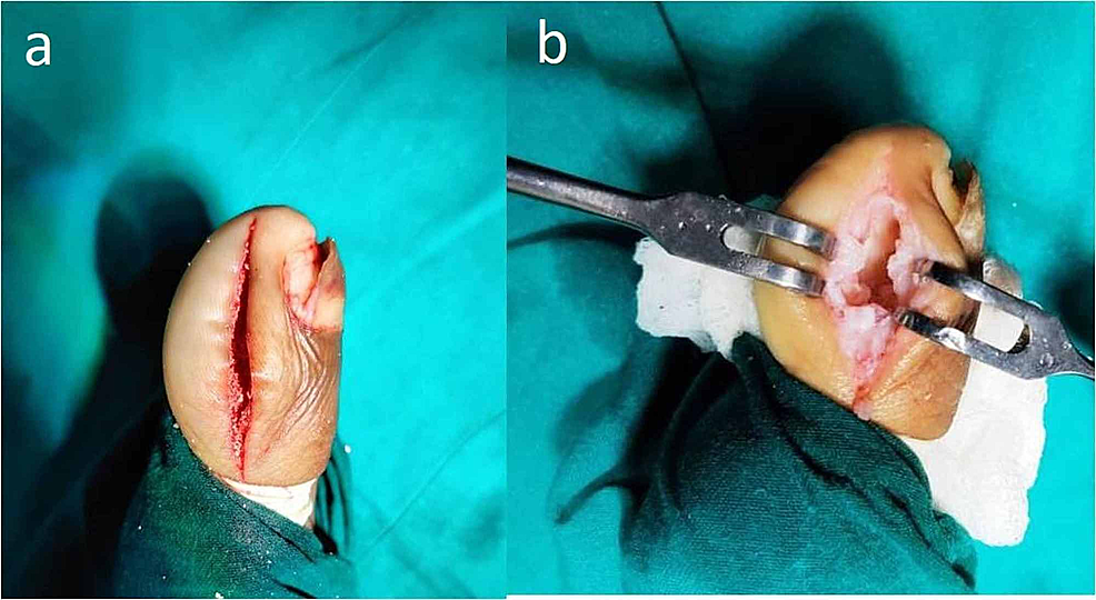 Approach-and-intra-operative-findings