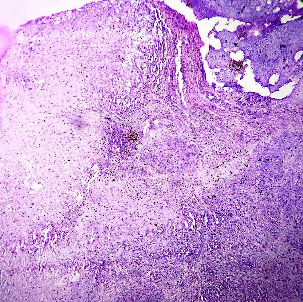 Histopathology-of-the-lesion