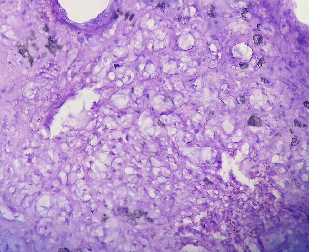 High-power-field-of-the-histopathology