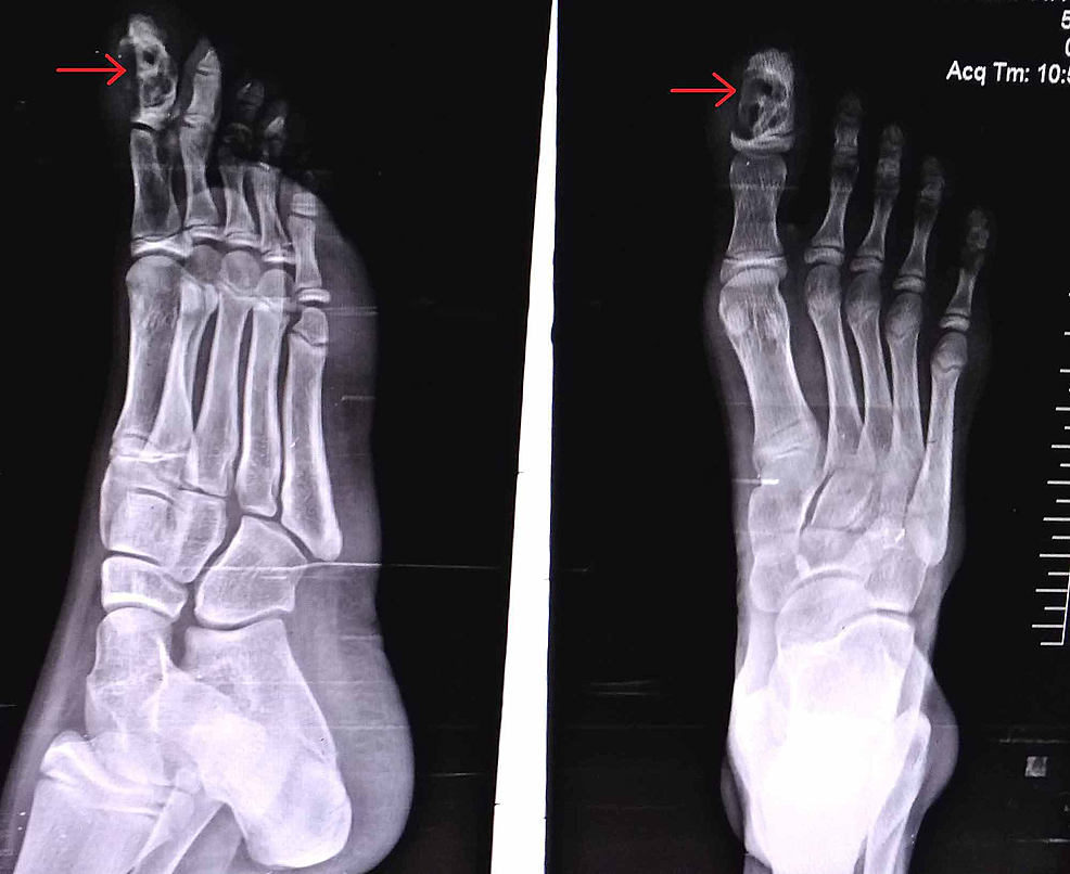 Anteroposterior-and-lateral-view-X-ray-of-the-right-foot