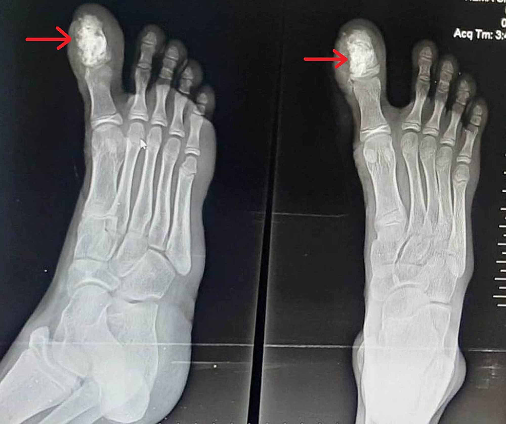 Post-operative-X-ray-of-the-right-foot