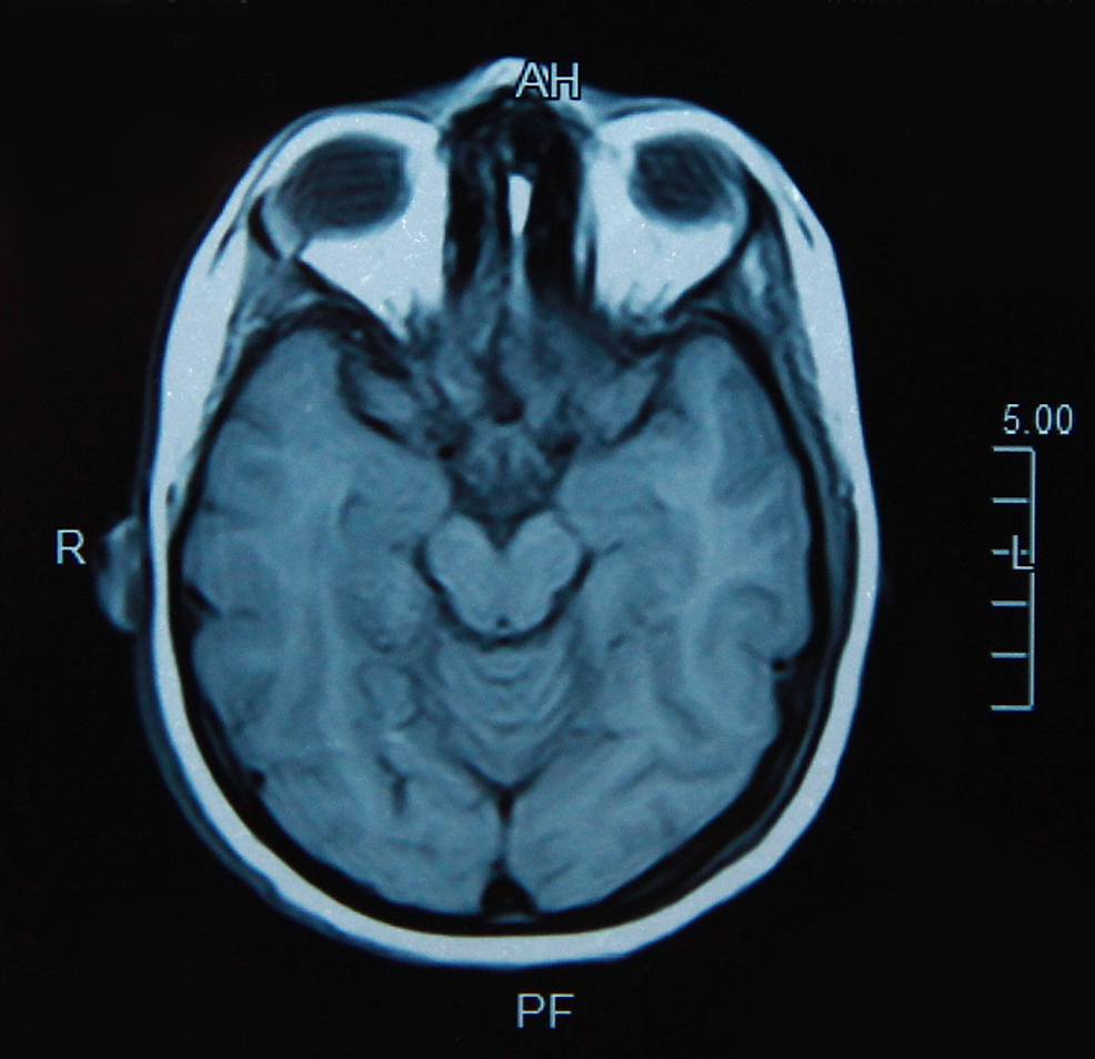 Magnetic-resonance-imaging-(MRI)-of-the-brain,-T1-weighted-image,-axial-view-showing-normal-brain-parenchyma-without-any-radiological-changes