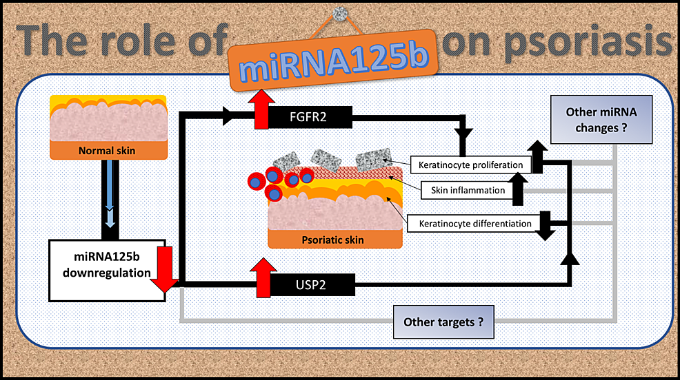 The-underlying-mechanisms-of-miRNA125b-downregulation-and-the-pathogenesis-of-psoriasis
