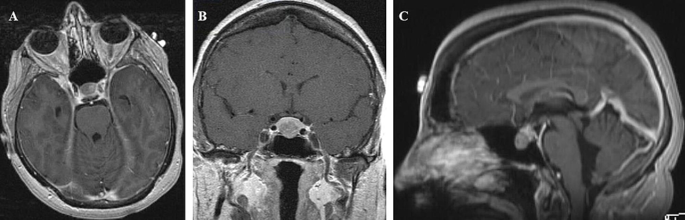 Preoperative-T1-weighted-MRI-brain-with-and-without-gadolinium-in-the-axial-(A),-coronal-(B),-and-sagittal-(C)-planes-showing-a-11.5-x-14.0-x-10.0-mm-hypoenhancing-mass-in-the-inferior-pituitary-gland-causing-upward-bowing-of-the-diaphragma-sella-and-mild-sellar-expansion.