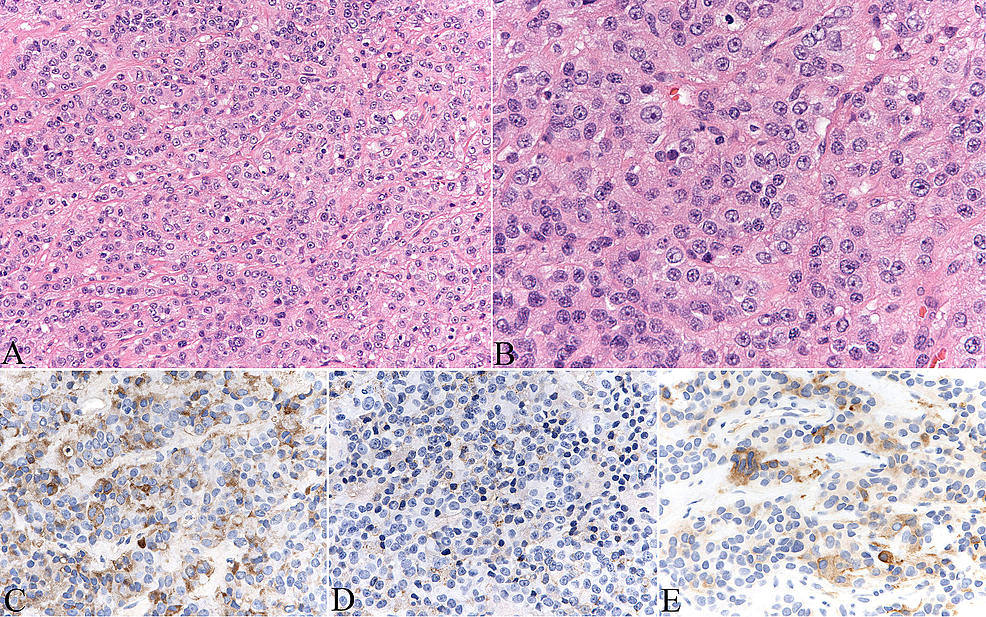 Hematoxylin-and-eosin-stained-sections-of-the-pituitary-lesions-show-neuroendoctine-neoplasm-(A,-B).-The-tumor-cells-express-TSH-(C),-growth-hormone-(D)-and-alpha-subunit-(E).-Original-magnifications:-200-x-(A,-C-E),-400-x-(B).