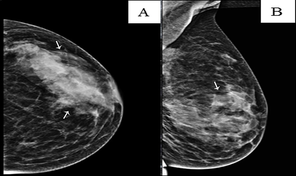Left-breast-mammogram
