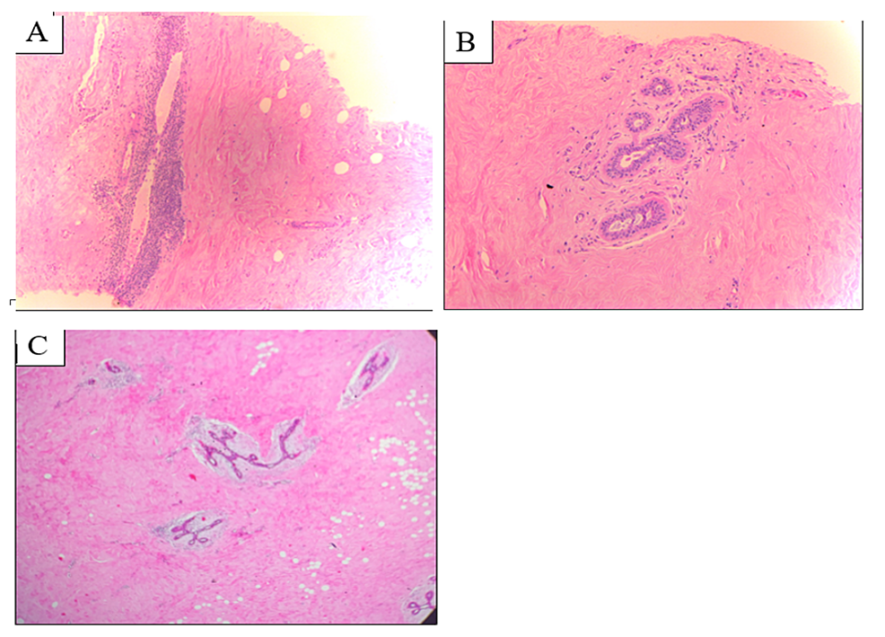 Microscopic-features-of-the-DMP-lesion