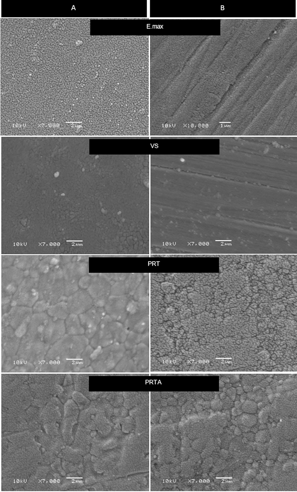 SEM-photomicrographs-(magnification-×7000)-of-the-four-groups
