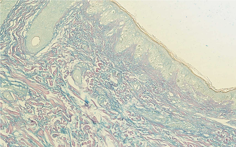 Thirty-six-year-old-lady;-Skin-punch-biopsy-from-the-right-cheek-showing-increased-dermal-mucin