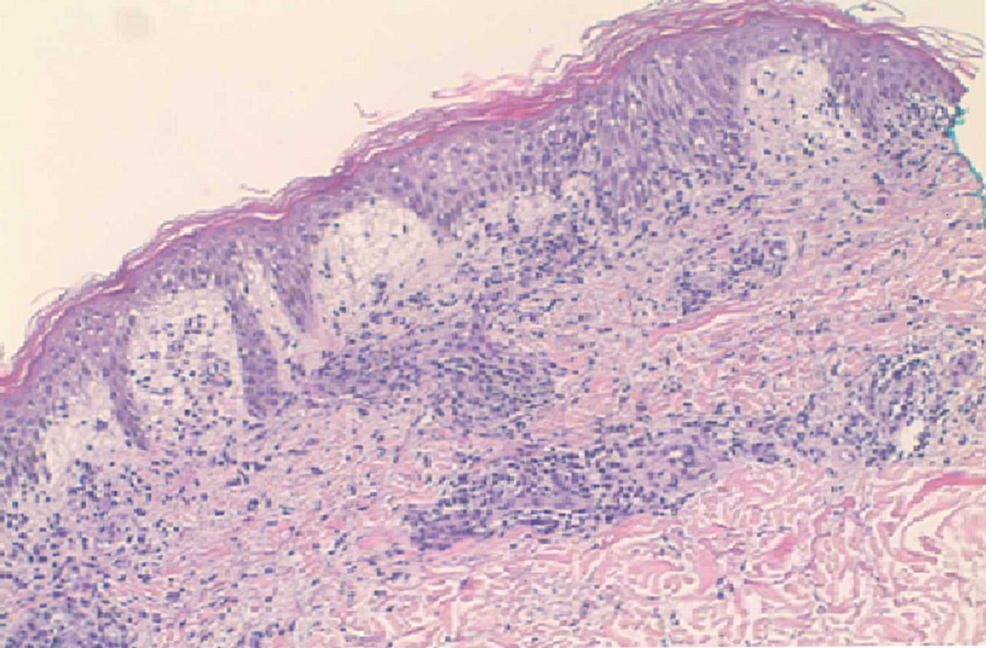 Punch-biopsy-of-the-skin-in-anterior-forearm-(10x).