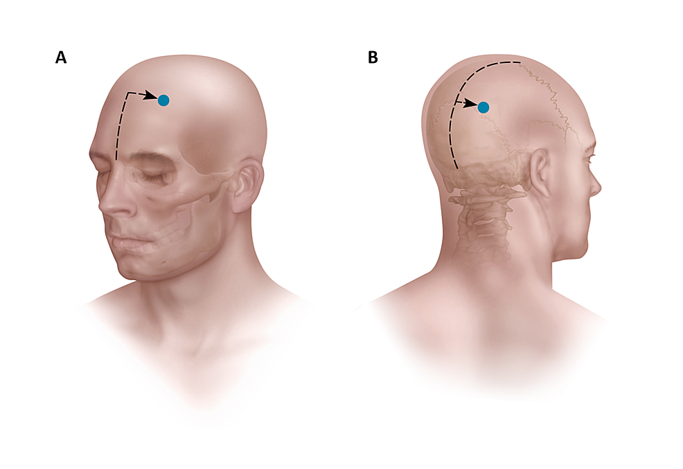 Artist-rendition-showing-the-entry-point-measurements-of-the-anterior-and-posterior-probes-on-the-cranium.-The-anterior-measurements-are-made-from-the-nasion-and-midline.-The-posterior-measurements-are-made-from-the-torcula,-the-coronal-suture,-and-midline.