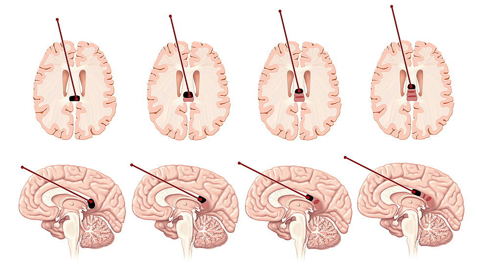 Placement-of-the-anterior-probe-along-the-corpus-callosum-for-a-posterior-one-third-callosotomy.