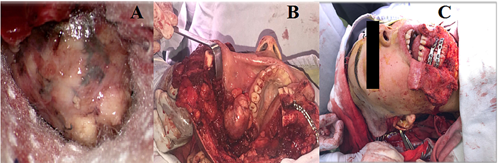 Images-of-the-surgical-procedure