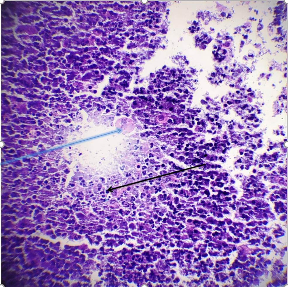 Fine-needle-aspiration-showing-histiocytes-(blue-arrow)-and-inflammatory-cells-(black-arrow)