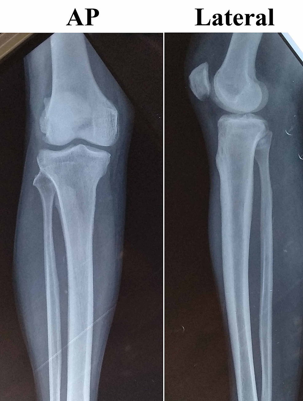 The-preoperative-X-ray-of-the-right-knee-joint-with-proximal-leg-and-distal-thigh-showing-no-osteomyelitic-changes.