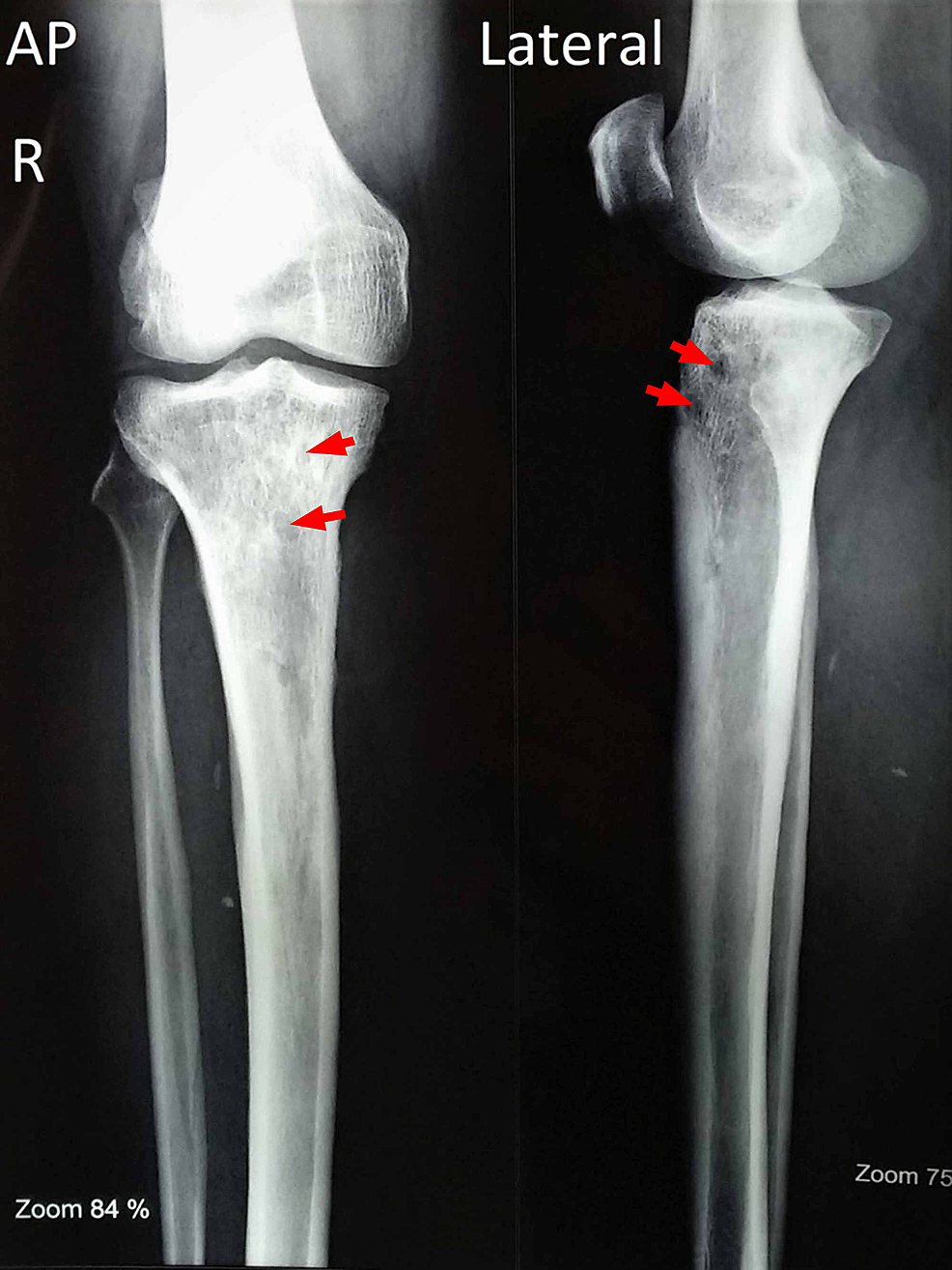 X-ray-of-right-leg-taken-six-months-postoperatively-showing-few-lytic-lesions-(red-arrows)-in-the-proximal-tibia.