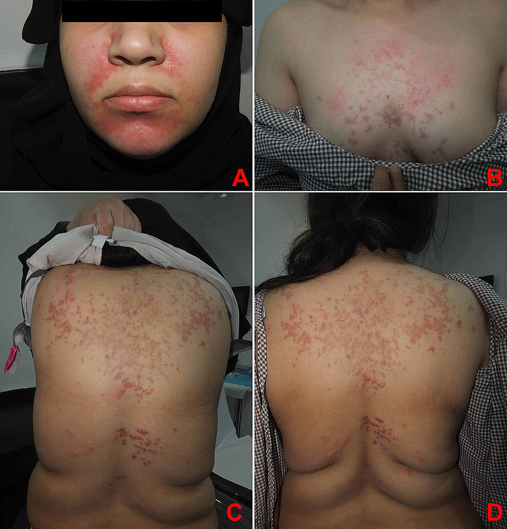 (A)-Face.-(B)-Chest.-(C,-D)-Back.-Multiple-erythematous-reticulated-papules-and-plaques-with-hyperpigmented-macules-and-patches.