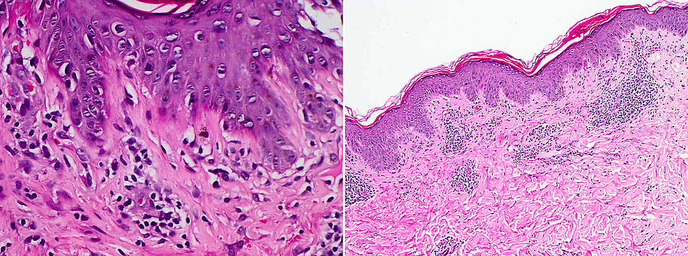 Mild-vacuolar-basal-cell-changes-with-focal-lymphocytic-exocytosis-and-scale-crusting,-in-addition-to-moderate-superficial-perivascular-lymphocyte-infiltrate-with-a-few-neutrophils,-eosinophils,-and-extraverted-red-blood-cells.