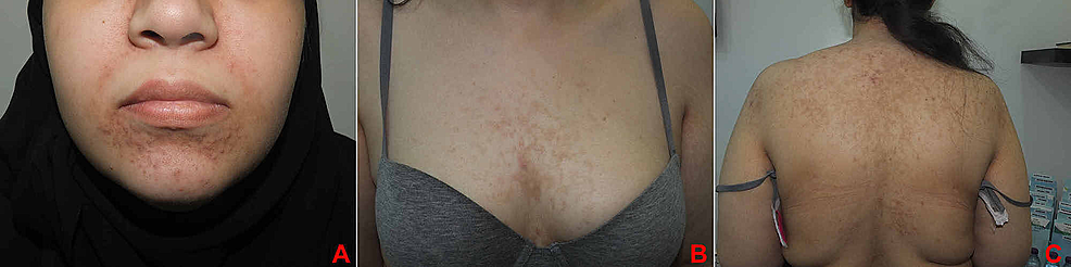 (A)-Face.-(B)-Chest.-(C)-Back.-Significant-improvement-leaving-post-inflammatory-hyperpigmentation.