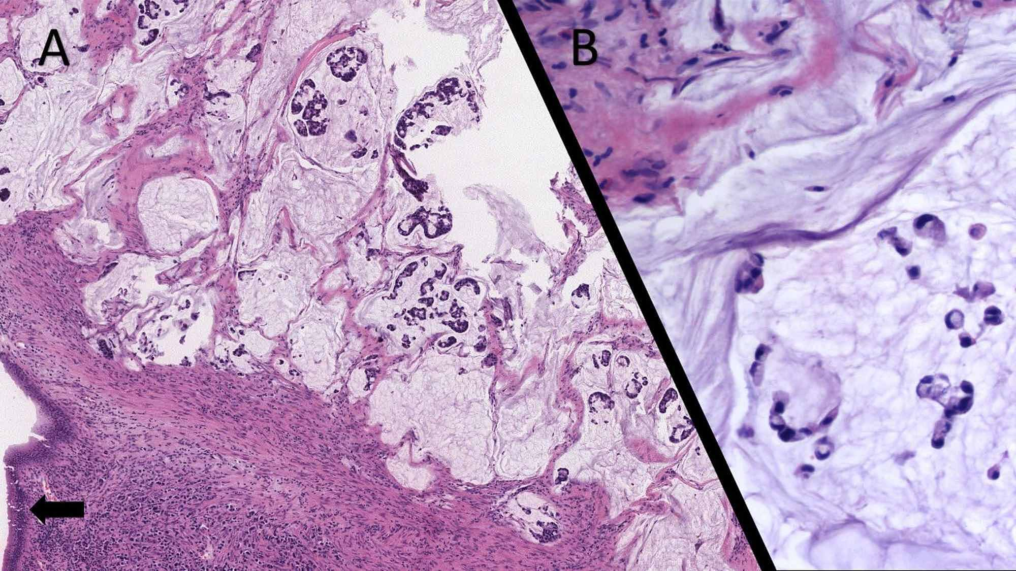 Cureus Most Common Pathway Of Metastasis Of Rectal Signet Ring Cell Carcinoma To The Skin Hematogenous