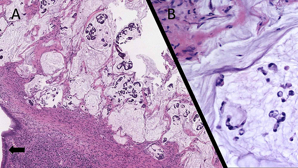 Rectal-Signet-Ring-Cell-Carcinoma