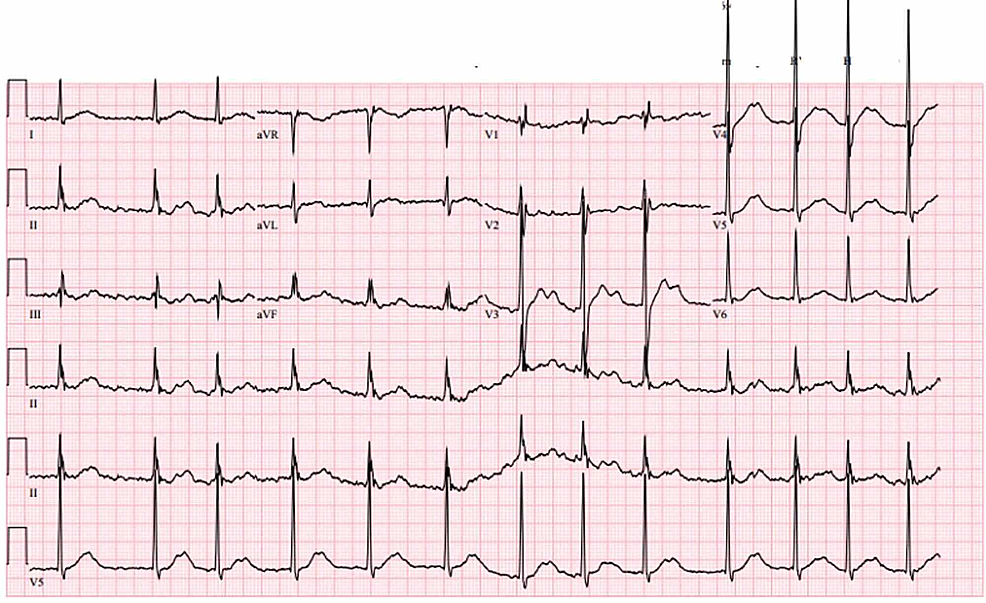 First-electrocardiogram-performed-in-the-emergency-department