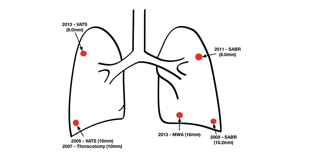 Diagram-of-the-various-pulmonary-lesions-and-treatments-performed-on-the-patient.