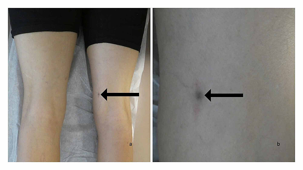 Clinical-presentation-of-foreign-body-(solder)-and-foreign-body-reaction-to-solder-presenting-as-a-cutaneous-tender-lesion