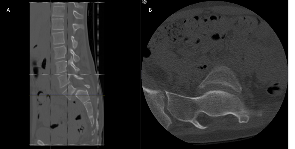 CT-scan-(A)-sagittal-and-(B)-axial-plane-image-showing-a-very-large-lamina-defect-at-the-level-of--S1-S2-presenting-spina-bifida,-L5-vertebral-body-wedging-and-irregularity-of-the-inferior-endplate-with-Grade-IV-spondylolisthesis