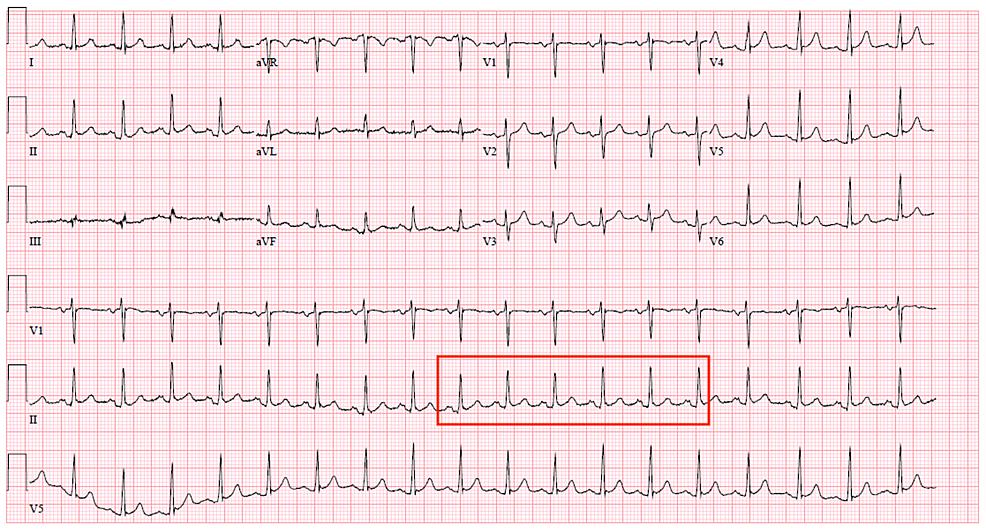 Electrocardiogram-showing-sinus-tachycardia.