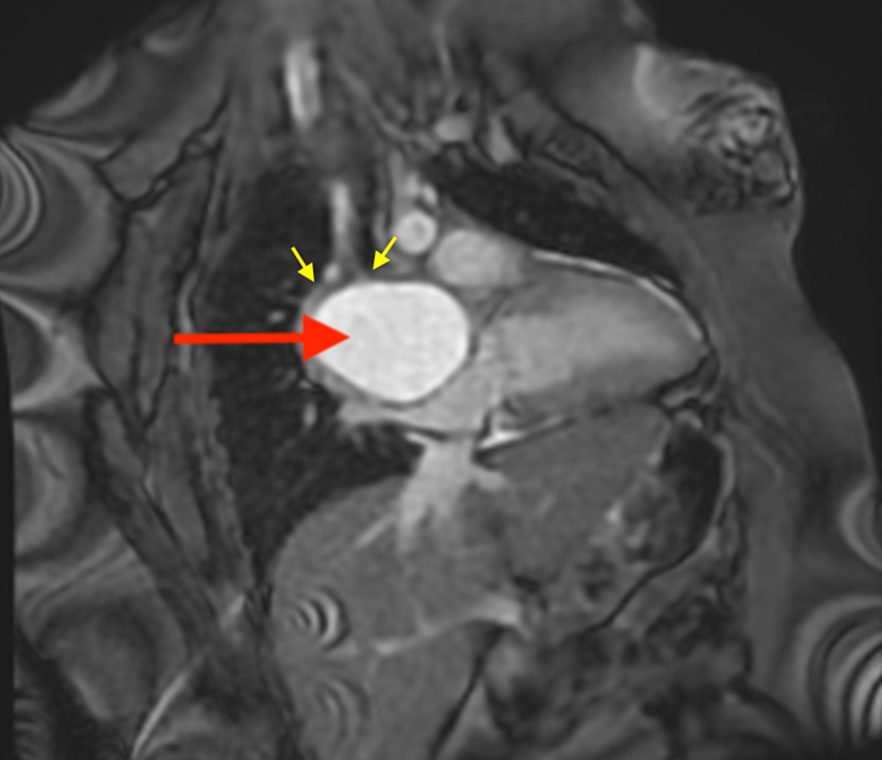 Cardiac-MRI-(FIESTA,-fat-saturated-two-chamber-view)-showing-T2-hyperintense-mediastinal-mass-(red-arrow),-splaying-the-mainstem-bronchi-(yellow-arrows).