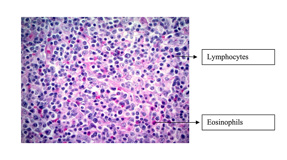 Biopsy-specimen-in-40x,-showing-polymorphic-infiltrate-including-eosinophils-and-small-lymphocytes