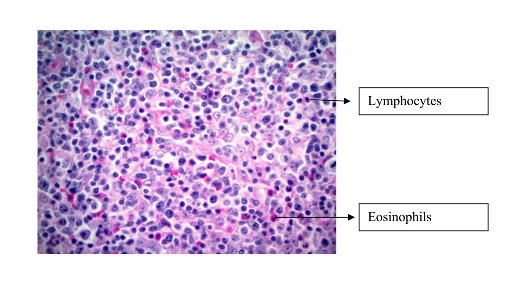 Cureus | Angioimmunoblastic T-cell Lymphoma: An Unusual Case in an  Octogenarian