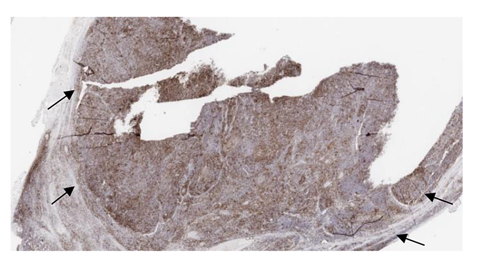 Immunostain-positive-for-PD1