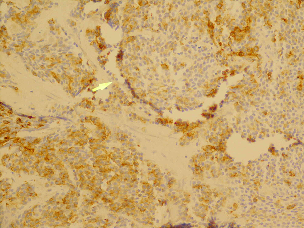 Typical-punctate-immunostaining-pattern-with-low-molecular-weight-cytokeratin-(200x-magnification)