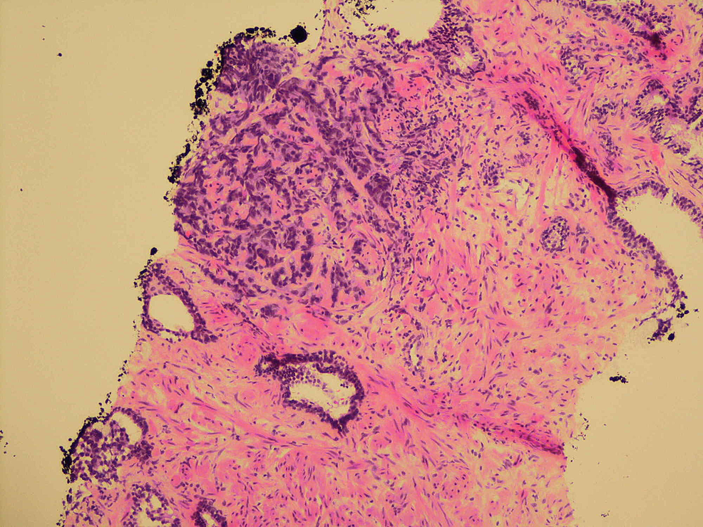Small-cell-carcinoma-infiltrating-stroma-with-adjacent-benign-glands-(100x-magnification)