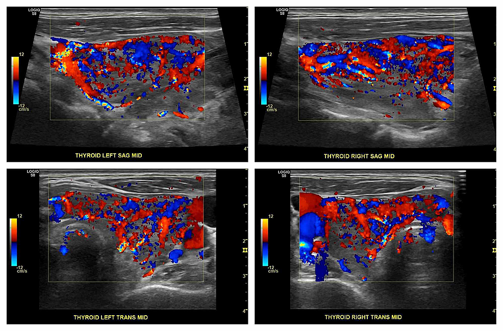 Ultrasound-Doppler-of-the-thyroid-showing-a-hyperemic-appearing-thyroid-gland-with-a-diffuse-increase-in-blood-flow-in-the-left-and-right-lobes-of-the-gland-