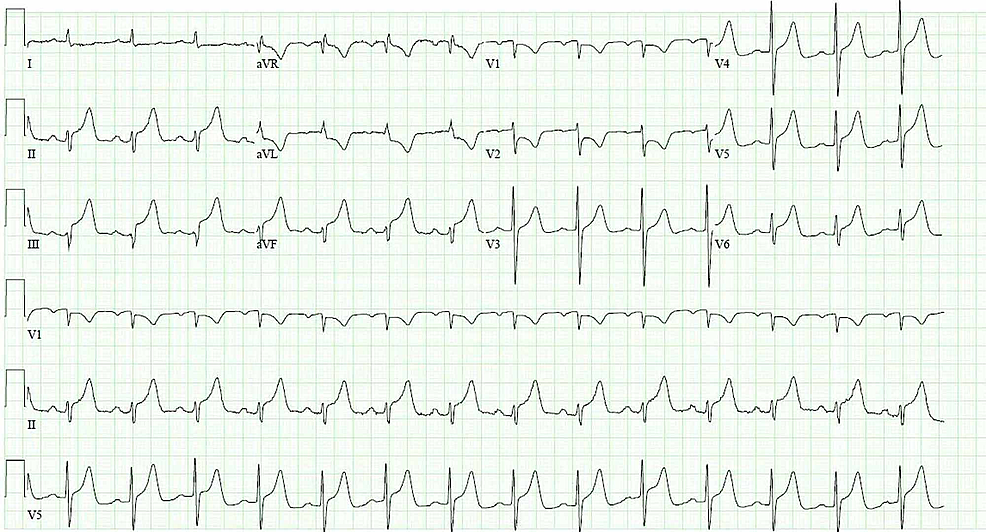 Electrocardiogram-on-presentation-showing-ST-elevations-in-leads-II,-III,-aVF,-V4-6-with-reciprocal-ST-depressions-in-leads-I-and-aVL
