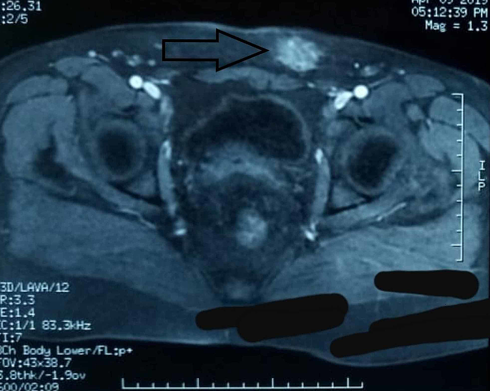 Pelvic-magnetic-resonance-imaging-(MRI)-scan-showing-a-mass-(black-arrow)-of-the-left-lateral-pelvic-wall