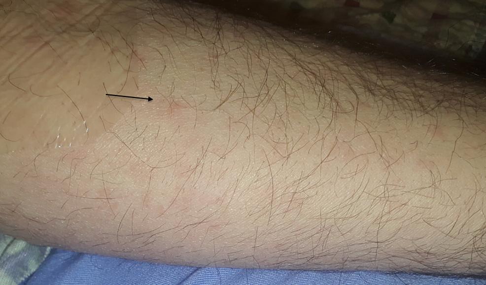 Maculopapular-rash-on-forearm-suggestive-of-secondary-syphilis
