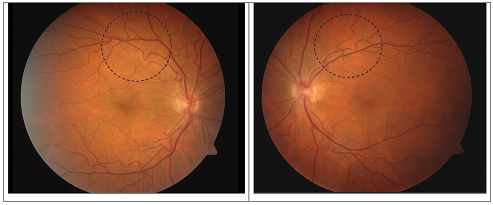 Right-and-left-fundus-photography