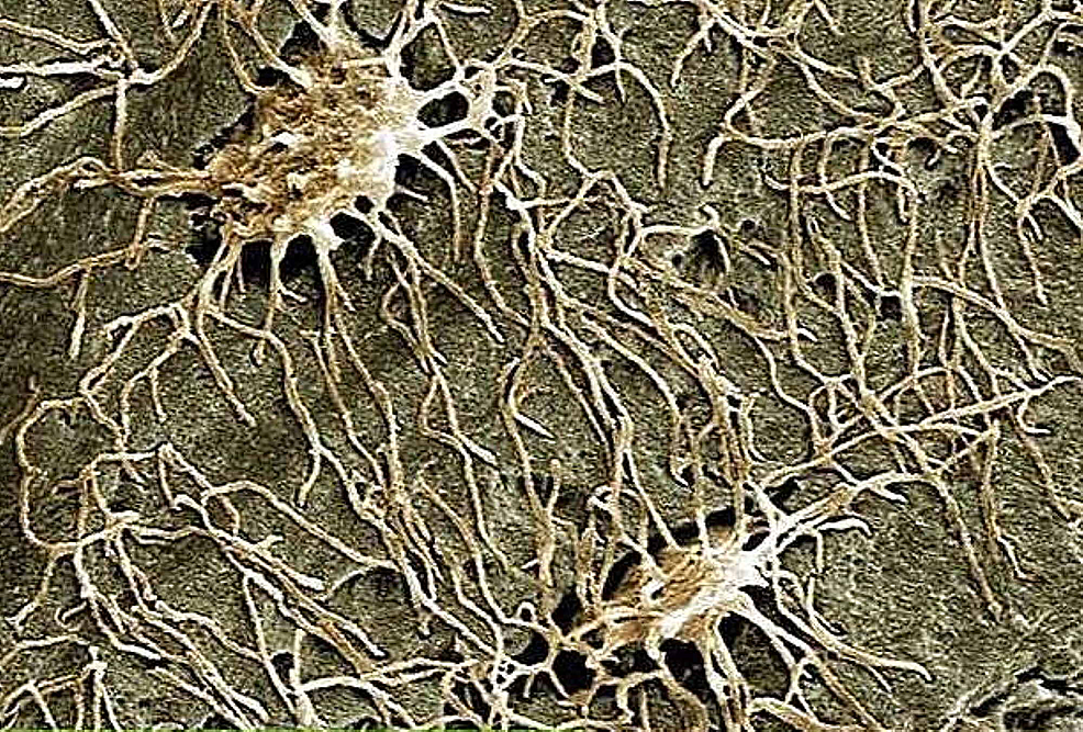 Electron-microscope-image-highlights-osteocytes.-The-image-is-taken-from-the-Don-Gnocchi-chemistry-and-research-laboratory-in-Milan.