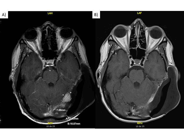 MRI-images-while-the-patient-was-on-crizotinib