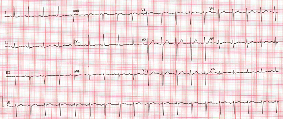 EKG-showing-sinus-tachycardia