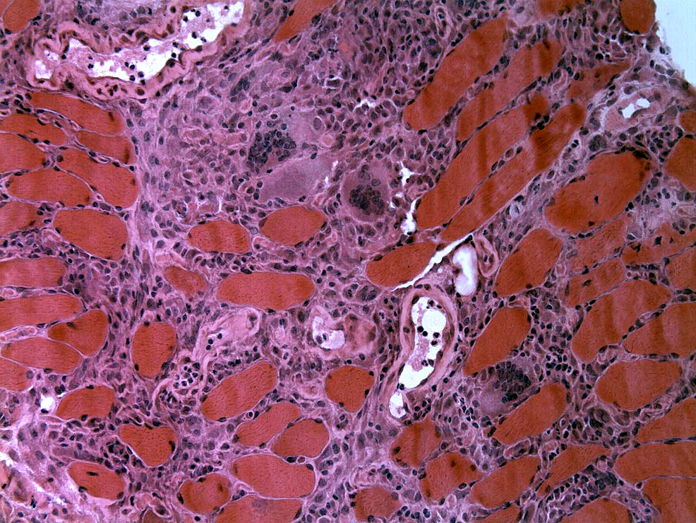 H&E-stain-of-muscle-biopsy-showing-inflammatory-infiltrate-consisting-of-lymphocytes,-histiocytes,-and-multinucleated-giant-cells-with-type-II-fiber-atrophy-consistent-with-a-diagnosis-of-sarcoid-myopathy-or-any-other-granulomatous-inflammatory-myopathy