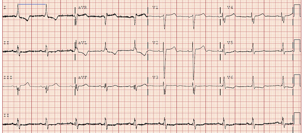 Electrocardiogram-showing-sinus-bradycardia-with-an-expected-rate-of-55-bpm