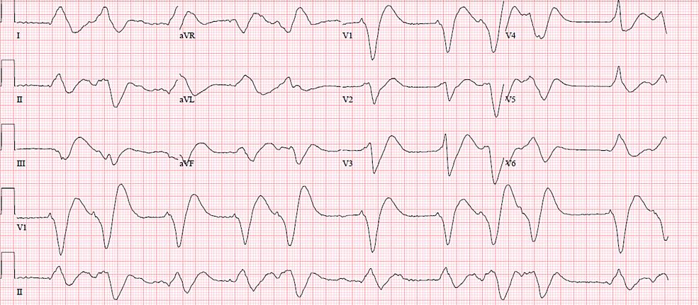 Electrocardiogram-revealing-wide-complex-ventricular-dysrhythmia-on-presentation
