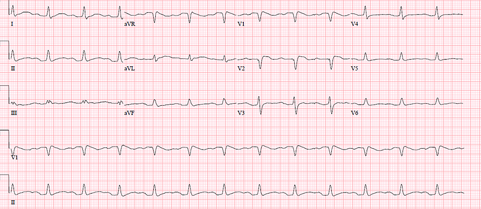 Electrocardiogram-on-discharge,-normal-sinus-rhythm-with-prolonged-QTc