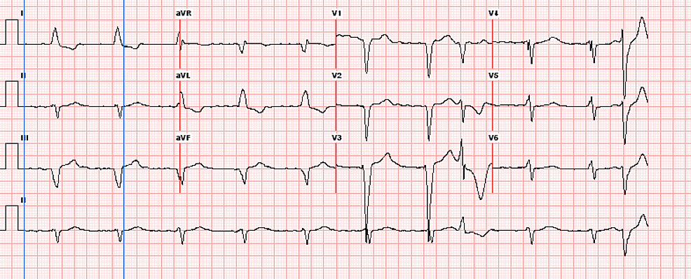 Electrocardiogram-showing-positive-rate-controlled-atrial-fibrillation-