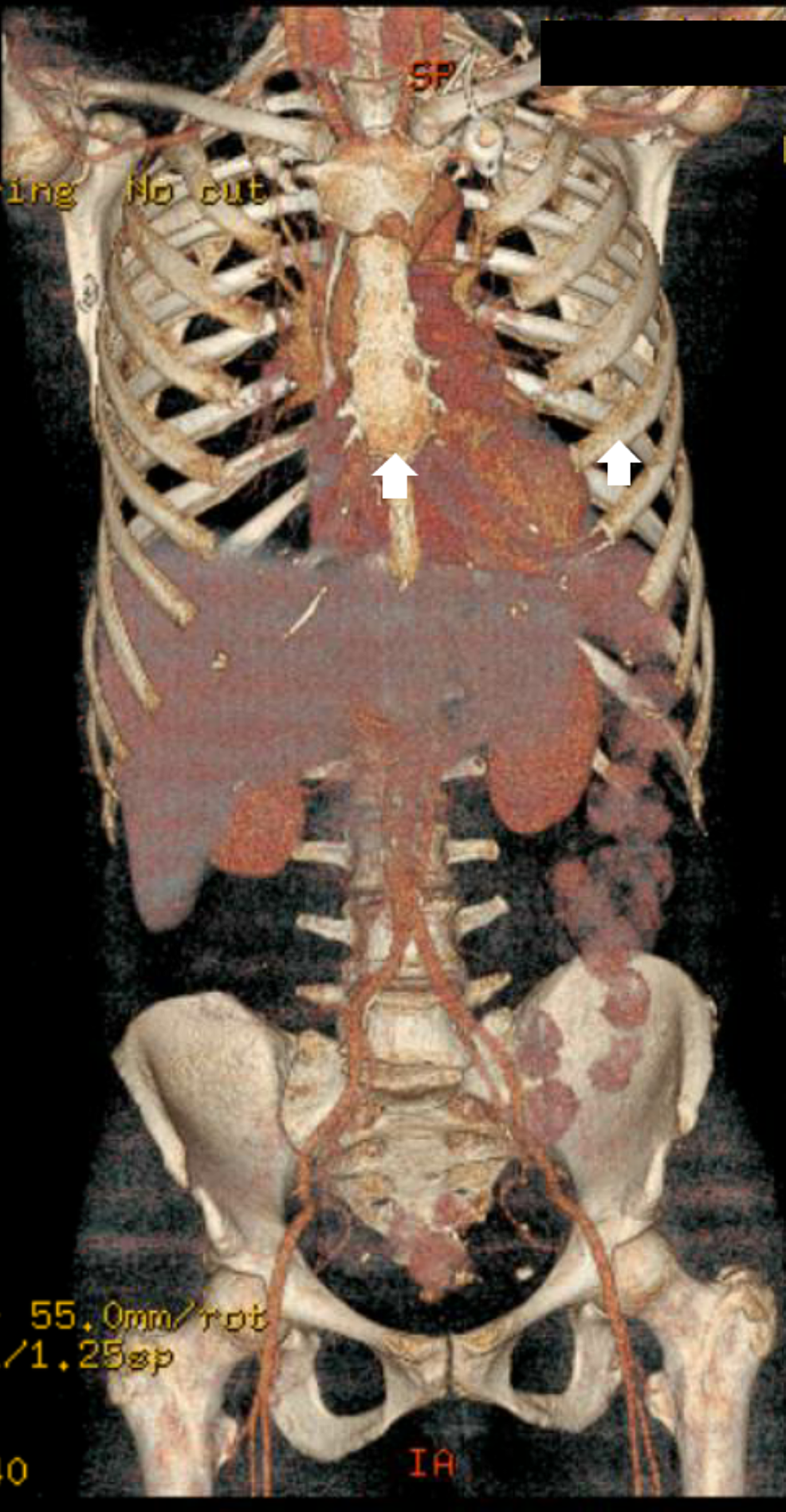 PET-CT-scan-for-staging